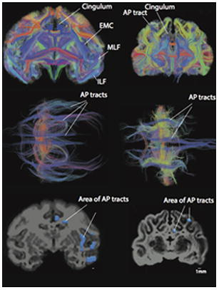Combining diffusion magnetic resonance tractography with stereology highlights increased cross-cortical integration in primates.